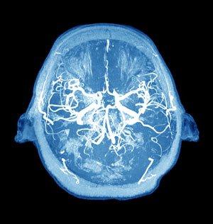 neurodegenerative.jpg
