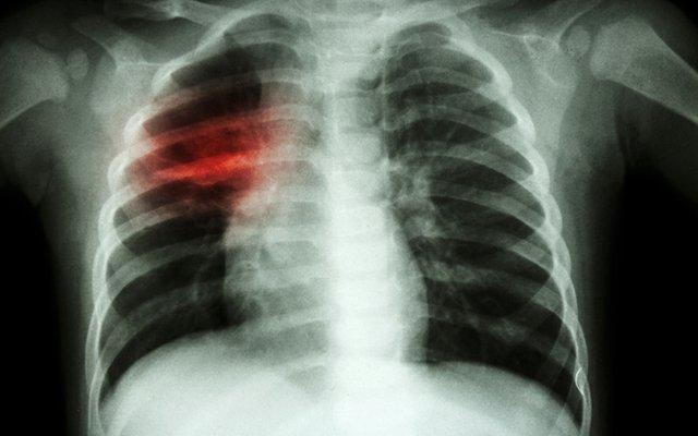 tuberculosis.jpg