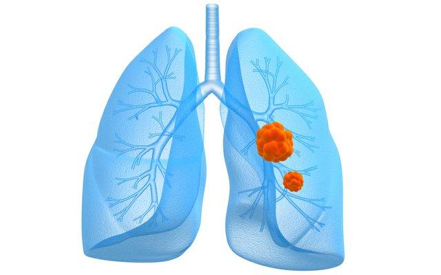 lung cancer award.jpg