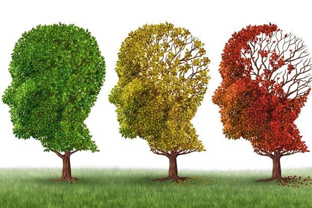 Alzheimers EPM