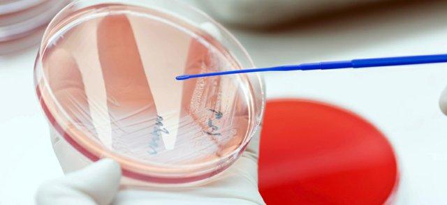 Antibacterial resistance