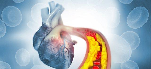 cholesterol heart.jpg